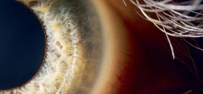 Բիոնիկական աչքը կուղարկի պատկերն ուղիղ դեպի գլխուղեղ