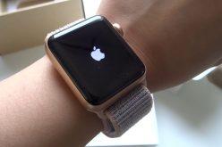 Apple–ը պատրաստվում է տեսախցիկով զինել Apple Watch–երը