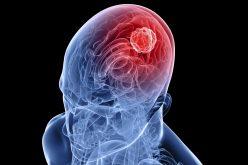 Գիտնականները գտել են ուղեղի քաղցկեղի զարգացումը կասեցնելու միջոցը