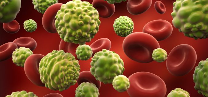 Քաղցկեղը ախտորոշել հնարավոր է 10 րոպեում. գիտնականներ
