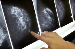 Արհեստական բանականությունը սովորել է հայտնաբերել կրծքագեղձի քաղցկեղը