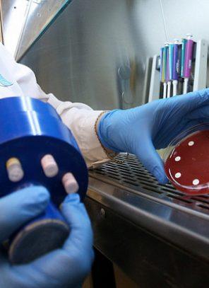 Փորձագետը գնահատել է կորոնավիրուսի դեմ պատվաստանյութի մշակման հնարավորությունը