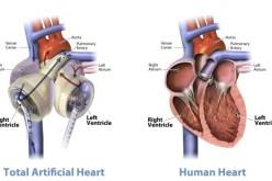 Գիտնականները 3D տպիչով սիրտ են ստեղծում