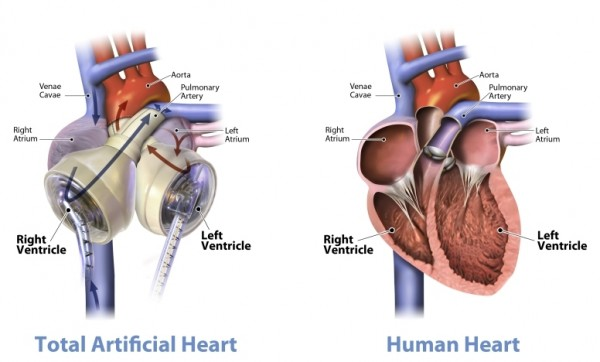 Graphic_of_the_SynCardia_temporary_Total_Artificial_Heart_beside_a_human_heart