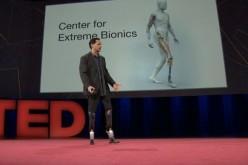 «Արհեստական» ոտքեր, որոնք թույլ կտան պարել (վիդեո)